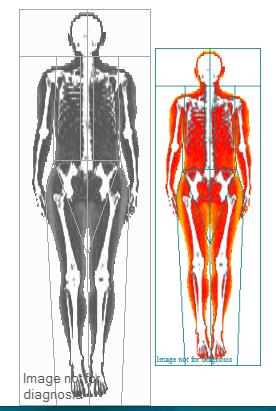 DEXA SCAN Body Composition Scan